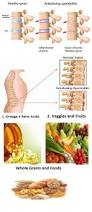 best 25 ankylosing spondylitis diet ideas on pinterest
