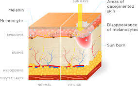 uvb light therapy for vitiligo clarify medical science studies on phototherapy treatment
