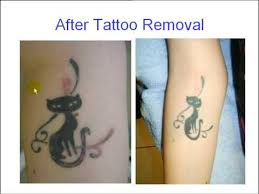 new tattoo removal youtube
