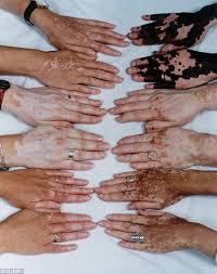 lukoskin new hope for vitiligo sufferers as drdo drug goes on