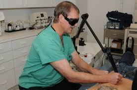4 tips to find the best tattoo removal specialist angie u0027s list