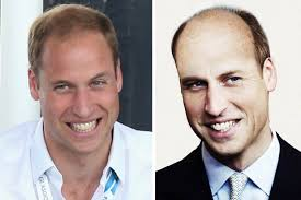 what causes hair loss in women over 50 how prince william will look at 50 royal scalp will be thinning