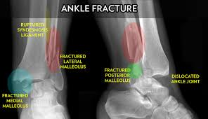 Fibular Avulsion Ankle Fracture Surgery Dr Neal Blitz New York Nyc