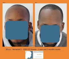 african american hair transplant african american hair transplant surgery results photographs with