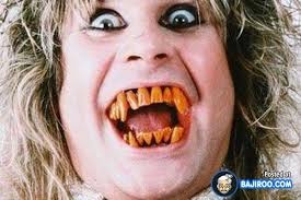 Bad Teeth Meme - bad funny teeth people images pictures fun humor weird pics 11