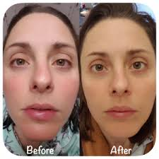 blue and red light therapy for acne reviews before and after results aduro australia