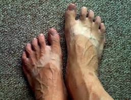 Ugly Feet Meme - disinfotainment tan lines