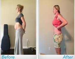 post pregnancy belly wrap see real before and after results with shrinkx belly