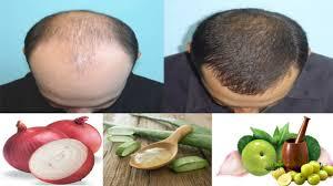 how to stop hair loss and grow hair faster 7 natural hair