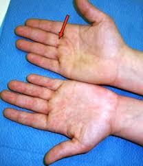 knoten handinnenfläche fingerganglion einführung operation pro
