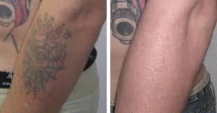 tattoo off u0026 tattoo removal cost in boston fresh start skincare