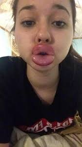 Big Lips Meme - the kylie jenner challenge is leaving kids with swollen bruised