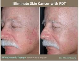 blue light therapy for skin cancer levulan blue light therapy actinic keratosis www lightneasy net