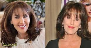 robin mcgraws hairstyle the 25 best robin mcgraw plastic surgery ideas on
