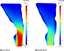 numerical simulations of airflow in the human pharynx of osahs