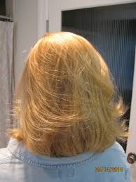 tints of nature hair colour bad reaction to hair color