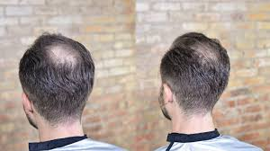 before and after thinning mens haircut how to cut style balding or thinning hair