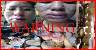 Pemutih Nh hati hatilah inilah akibat sering memakai krim pemutih wajah