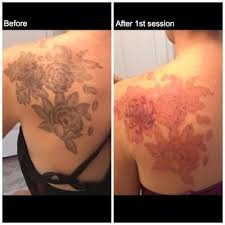 19 best tired of that tattoo see the results of tattoo removal