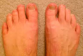 Wide Nail Beds Erythromelalgia In Toes Info Not Crps Complex Regional Pain