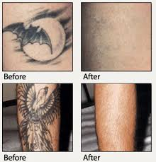 tattoo removal shoulder tattoo removal md skin therapy