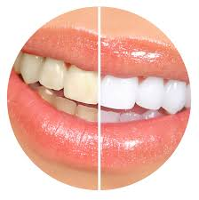 teeth whitening in shoreham by sea whiter brighter teeth st