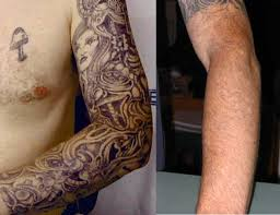 laser tattoo removal aaron stone md plastic surgery