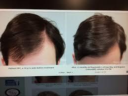 rogaine for women success stories 2 months progress finasteride rogaine hairlosstalk forums