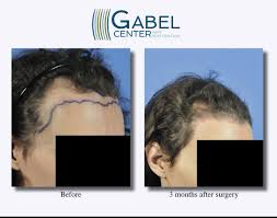watch a patient u0027s real time growth after 3439 grafts gabel hair