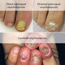 nail fungus treatment symptoms medications causes u0026 pictures