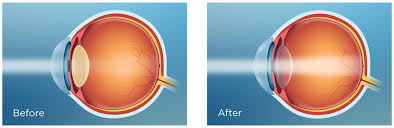 light streaks after cataract surgery how to preserve your rejuvenated vision after cataract surgery