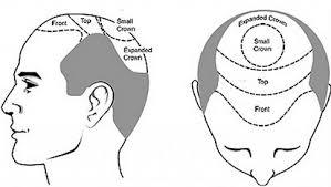 dhi hair transplant reviews the 25 best hair transplant cost ideas on pinterest best hair