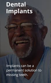 Meme Implants - dental implants dentist dublin oh tuttle crossing dental group