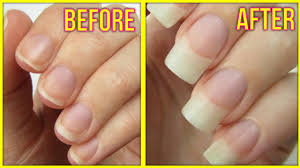homemade nail growth treatment 100 guaranteed result in just 7