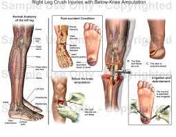 Interactive Knee Anatomy Right Leg Crush Injuries With Below Knee Amputation Medical