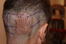 how much is average price for hair cut and color my u fue gj cut whtc unshaven non shaven fue hair transplant