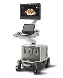ultrasound machine comparison table compare systems kpi healthcare