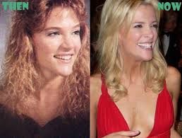 does megjan kelly wear hair extensions megyn kelly plastic surgery before and after breast nose job