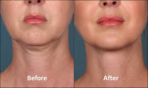 flattering hairstyles for double chins or sagging necks double chin treatment washington dc and chevy chase md