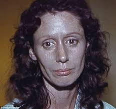 hair colors for women over 60 gray blue woman suffers argyria for 60 years after silver built up in her