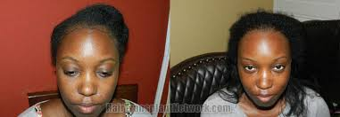 hair transplant for black women female hair transplant surgery before and after result photographs