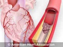 What Is Dead Tissue Called About Heart Attacks