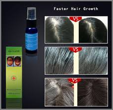 Hair Loss Cure For Women Treatment For Grow Hair New Hair Style Collections
