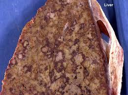 cuisine n駱alaise 187 hematopathology