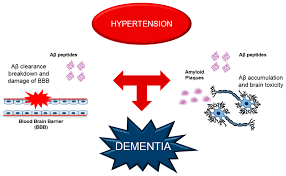 ijms free full text hypertension and dementia epidemiological