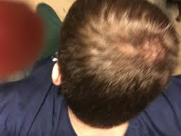hairstyles for bald spots fade haircut