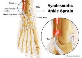 High Ankle Sprain Anatomy Syndesmotic Sprain Or Syndesmotic Ankle Sprain Causes Symptoms
