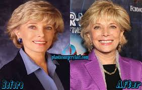 pictures of leslie stahl s hair leslie stahl plastic surgery before and after photos