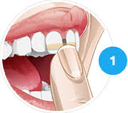 goody bands for teeth orthofill teeth gap bands orthodontic bands