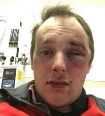 Chris Barnes Ole Miss Fan Chris Barnes Says He Was Assaulted By Police Video